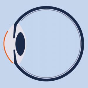 Eingriff bei LASIK Augenlaser Behandlung