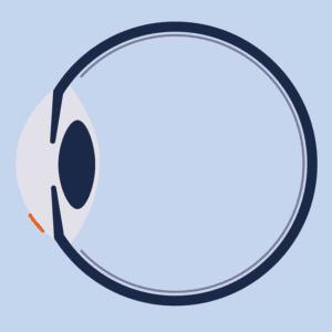 Minimal-invasiver Eingriff bei SMILE Augenlaser Behandlung